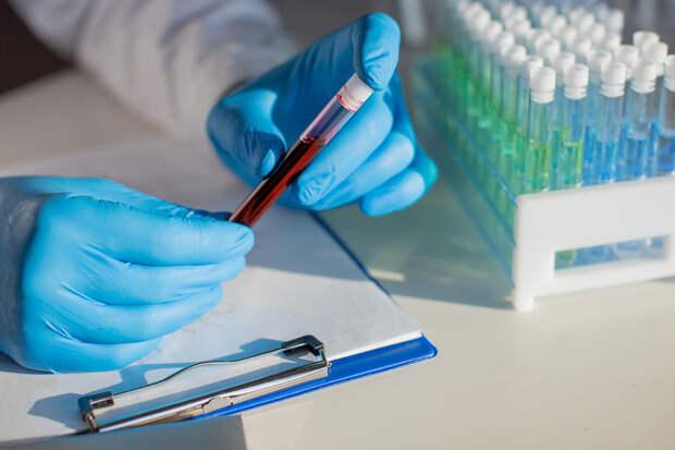 Более 8,5 тыс. случаев коронавируса выявлено за сутки в России