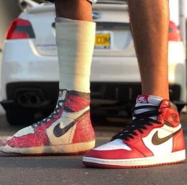 Гипс кроссовки