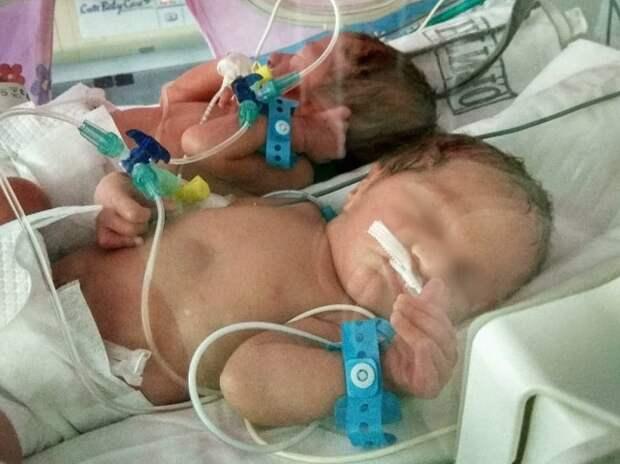 В Краснодаре в перинатальном центре за один день родились три двойни