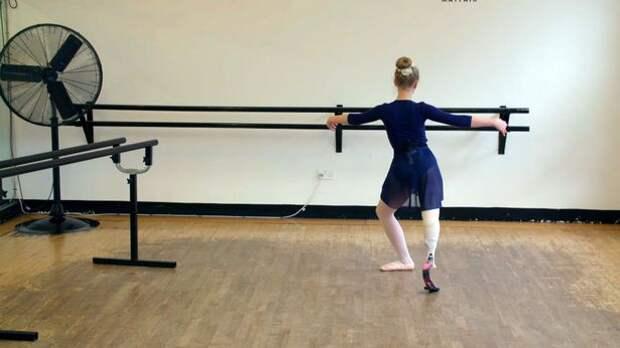 «Протез для балерины»: для 13-летней девочки разработали специальный протез, чтобы она смогла танцевать