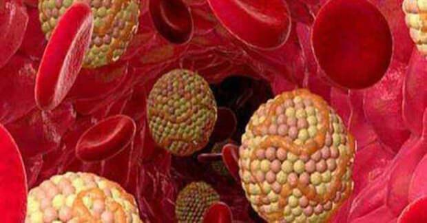 1 фрукт очистит Ваши артерии с лёгкостью! Смотреть всем!
