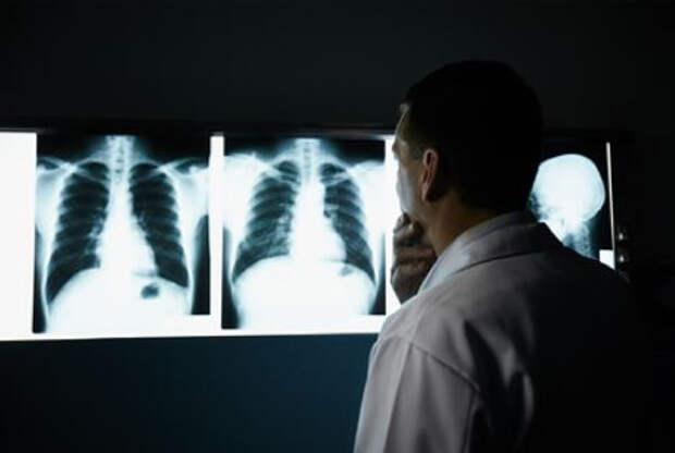 Российский врач рассказала о самом частом осложнении после коронавируса
