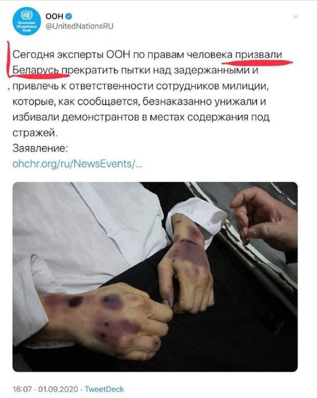 Фейк от ООН: Снимок замученного СБУ дончанина выдали за пытки белорусского ОМОНа
