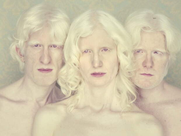 Белоснежные: 10 фактов об альбиносах