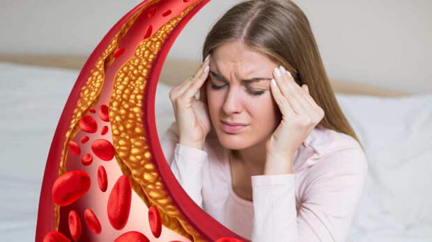 Невролог рассказал о главных опасностях высокого уровня холестерина в крови