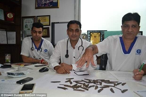 Индиец проглотил 40 ножей, потому что ему понравился их вкус больные люди, индия, ножи, операция