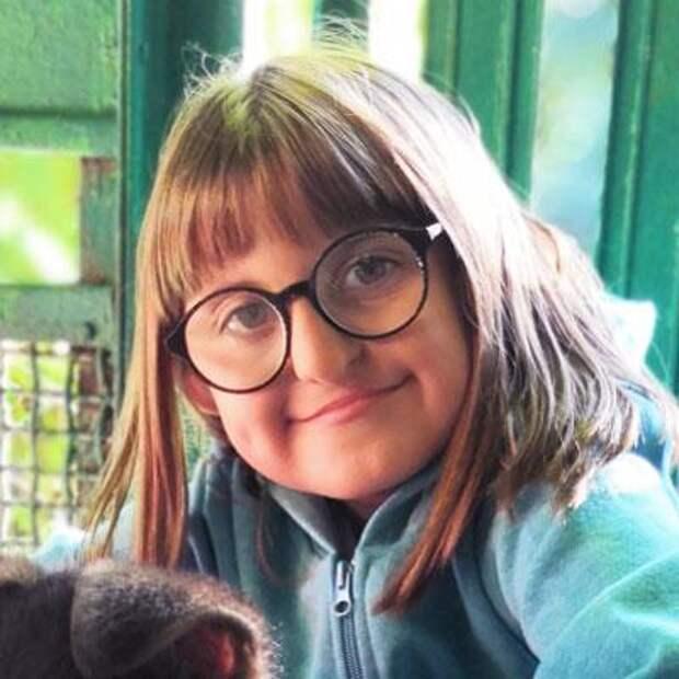 Маша Чеботкова, 8 лет, врожденная расщелина альвеолярного отростка, недоразвитие верхней челюсти, сужение зубных рядов, требуется ортодонтическое лечение, 127003₽