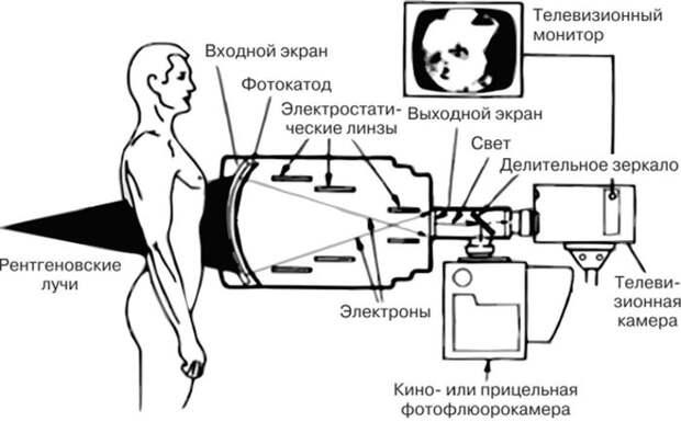 Принцип флюорографии