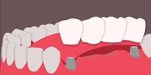 Мост, который крепится на обточенные зубы и замещает отсутствующие