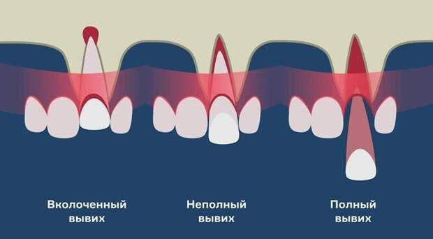 Чем грозит отсутствие зуба, и почему «мосты» и протезы не спасают от деформации челюсти