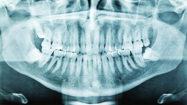 Стоматолог заявила, что неправильный прикус вызывает мигрень