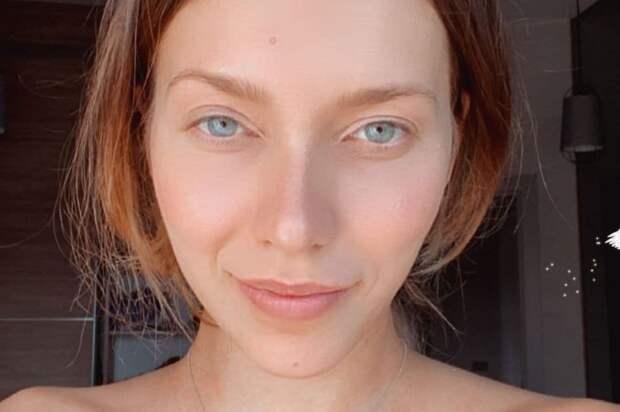 У Регины Тодоренко нашли «болезнь Майкла Джексона»