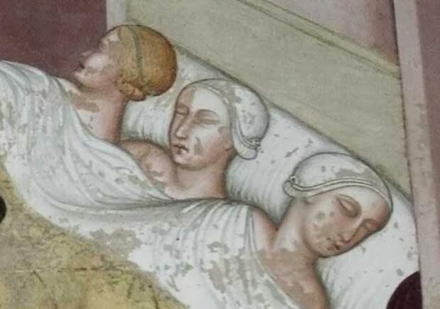 В одну кровать складывали и больных.