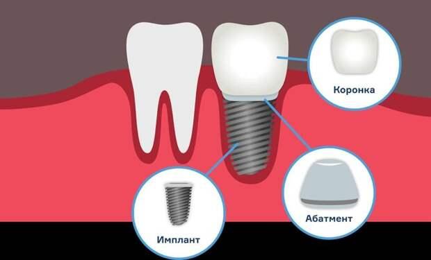Имплантат состоит из трёх частей