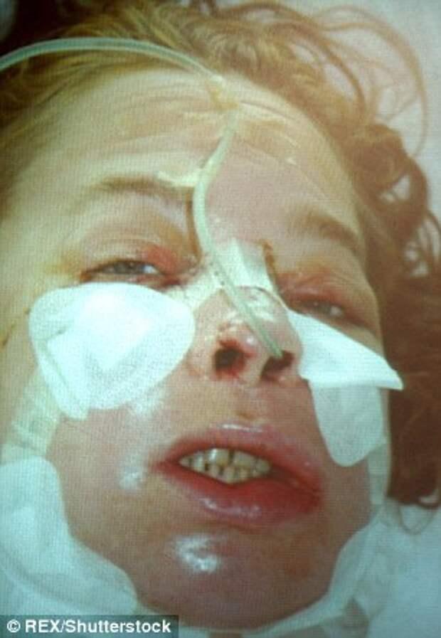 Первая женщина с пересаженным лицом умерла от рака, вызванного лекарствами против отторжения трансплантатов
