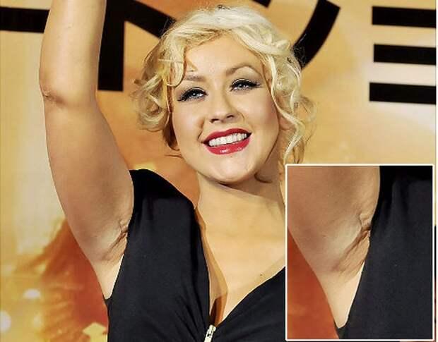 5 знаменитостей, которые увеличили грудь и пожалели об этом