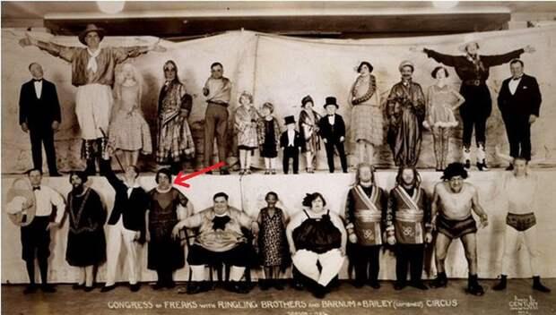 Мэри Энн Вебстер: как болезнь превратила красавицу в чудовище