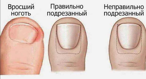 Домашнее лечение вросшего ногтя - народными методами можно быстро справиться с проблемой