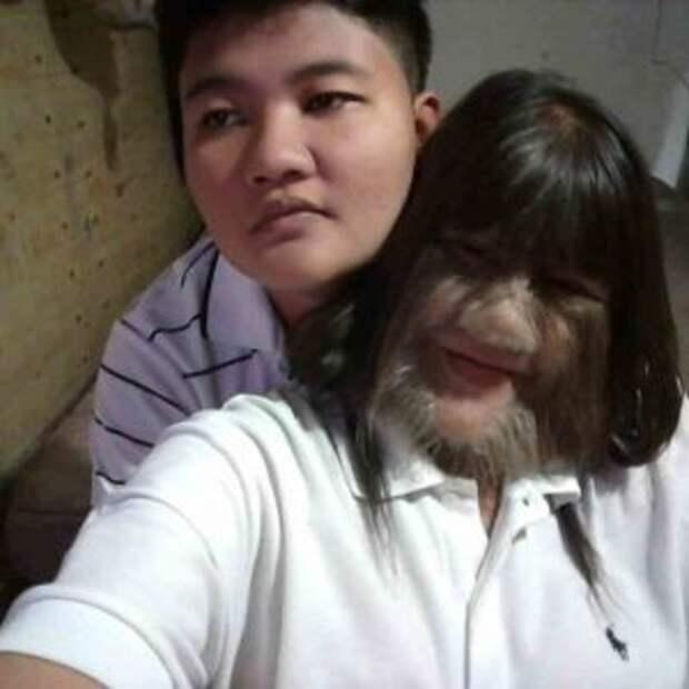 Девушка с синдромом оборотня вышла замуж и теперь бреет свое лицо