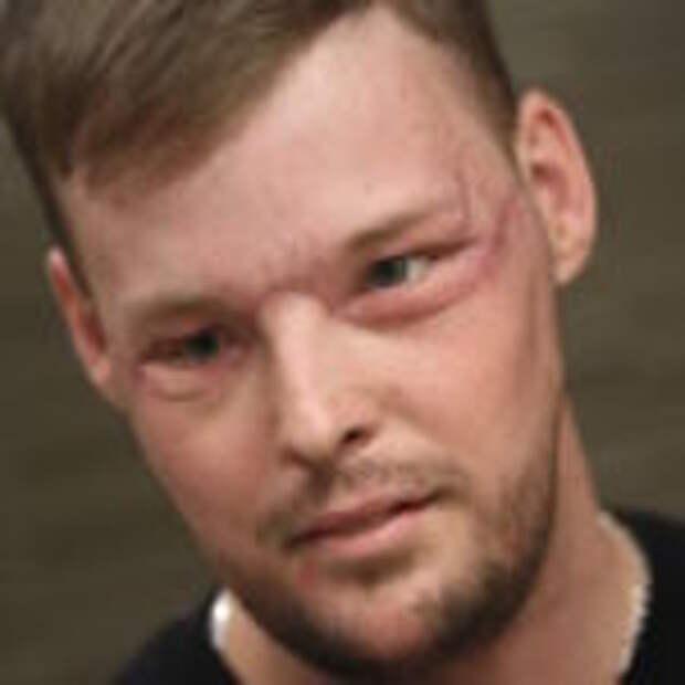 Невероятные результаты пересадки лица, сделанной парню после того, как он выстрелил себе в лицо