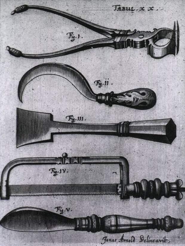 Инструменты для ампутации, 1666 г.
