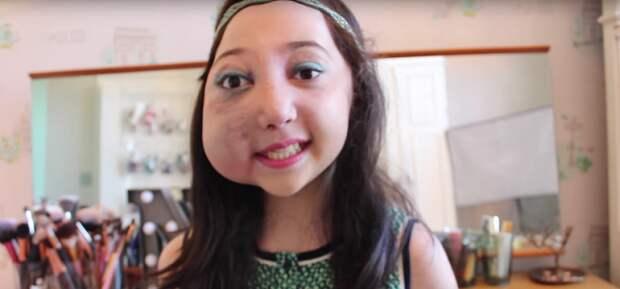 В 6 лет ей поставили страшный диагноз. Но она знает, что такое истинное счастье!