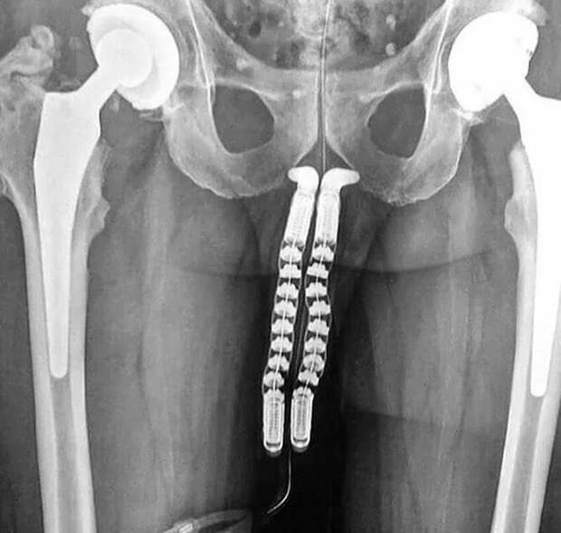 Богатый внутренний мир: 17 рентгеновских снимков, которые врачи не сразу развидят