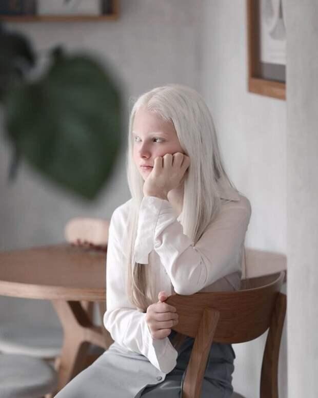 Девочка-альбинос изЧечни поразила своей уникальной внешностью