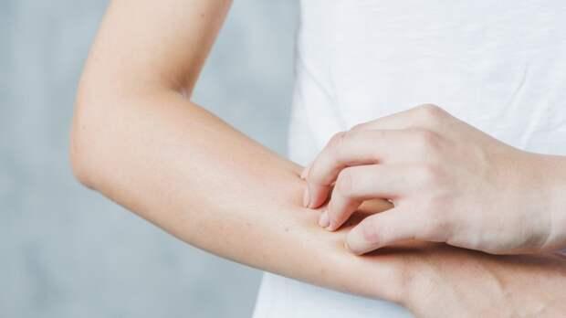 Диетолог Титова назвала опасные для сезонных аллергиков продукты