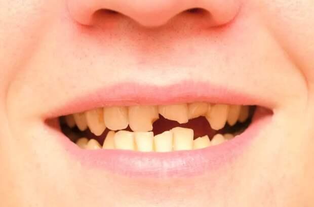 """Люди и нас ходят беззубые, потому что цены в стоматологиях """"не по зубам""""."""