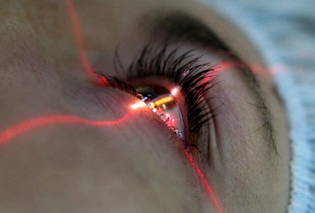 Познавательные факты о лазерной коррекции зрения