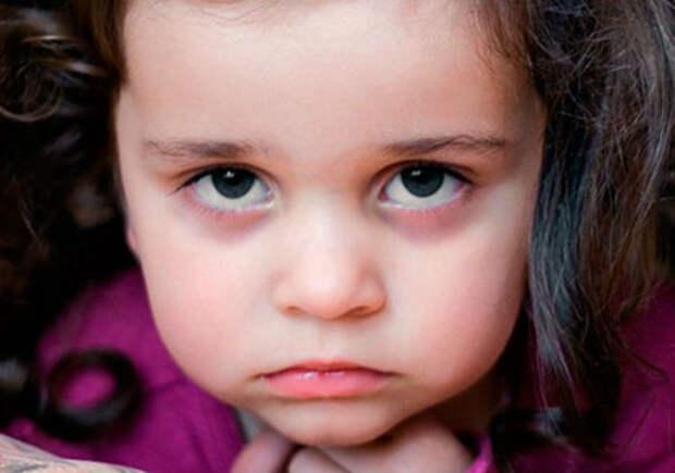 Синяки под глазами у детей