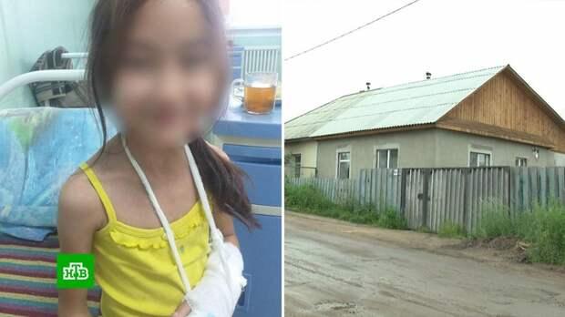 «Буду рубить ей пальцы»: приемная мать истязала 8-летнюю девочку в Бурятии