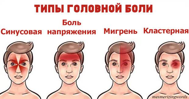 Есть 4 вида головной боли. Вот как правильно избавиться от каждой из них