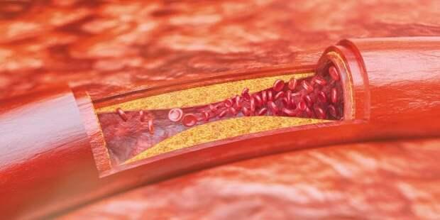 Холестерин: атеросклеротические бляшки