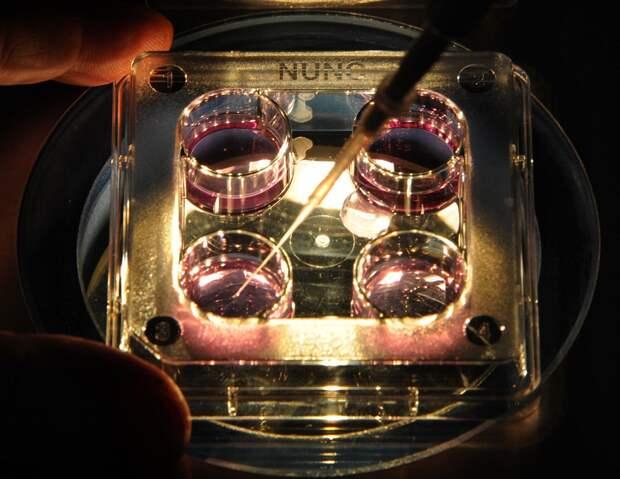 Вместо чуда - безумная череда смертей от рака: кто задумал эксперимент над русскими?