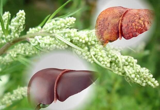 Печень можно вылечить травами. 5 простейших рецептов