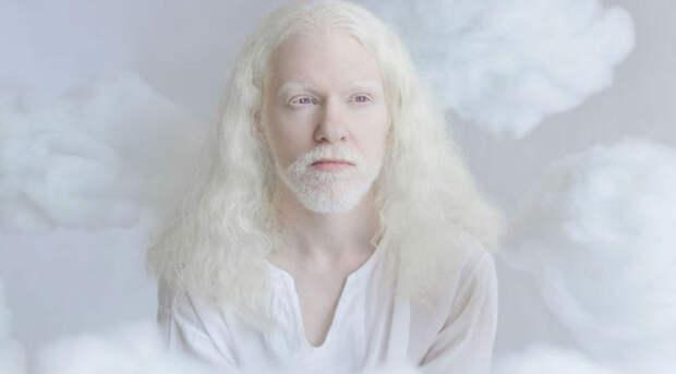 Волшебная красота людей-альбиносов в фотопроекте израильского фотографа