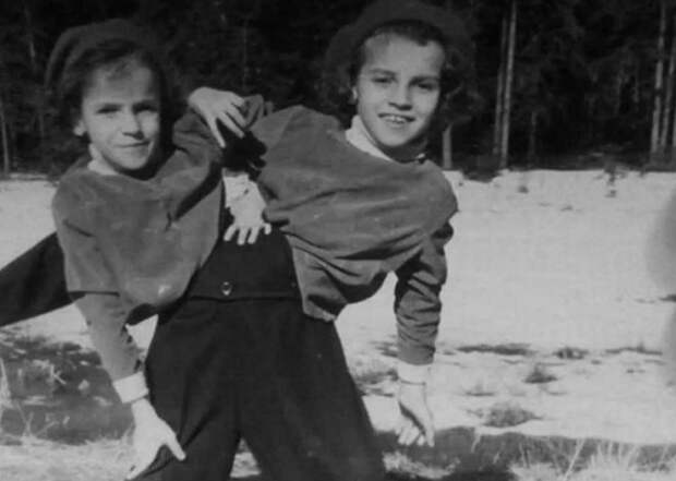 Сестры Кривошляповы: что стало с самыми известными сиамскими близнецами