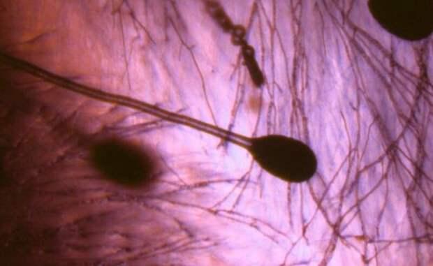 """Врачи-иммунологи объяснили, как """"черная плесень"""" попадает в организм"""