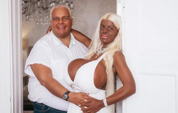 Жительница Германии решила стать афроамериканкой. Вот как она выглядит теперь! Мартин Биг, в мире, внешность, красота, люди, операция