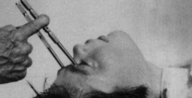 Бедлам, лоботомия и цепи: жуткая история психиатрии 22