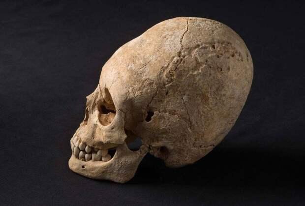 Ученые создадут 3D-модели гробниц амазонок с вытянутыми черепами из Абрау-Дюрсо