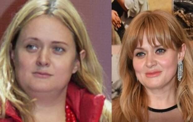 «Никакого ЗОЖ!»: Как похудела на 15 кг Анна Михалкова