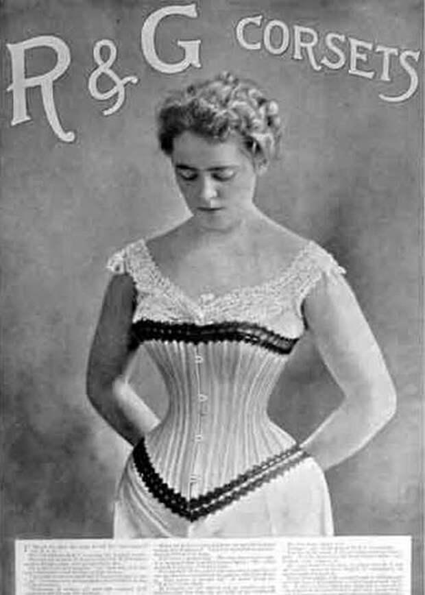 Смертоносная мода: 10 фешн-трендов в истории, который доводили модников до гибели