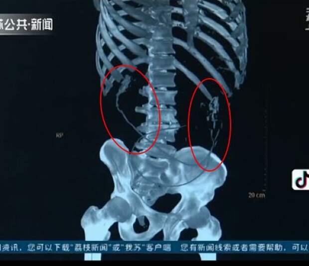 Китаец проглотил живьем двух угрей, чтобы вылечить запор, и они прогрызли ему кишечник