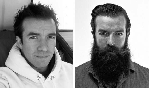beards22