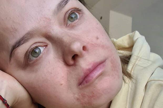 Наталия Медведева показала обезображенное болезнью лицо