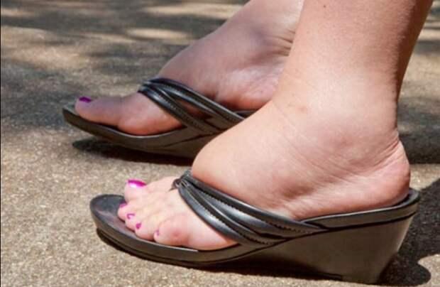 Она думала, что ноги отекают от неудобной обуви… Но врач развеял все мифы!