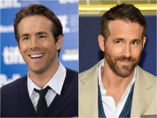 Как изменились голливудские знаменитости за последние 10 лет